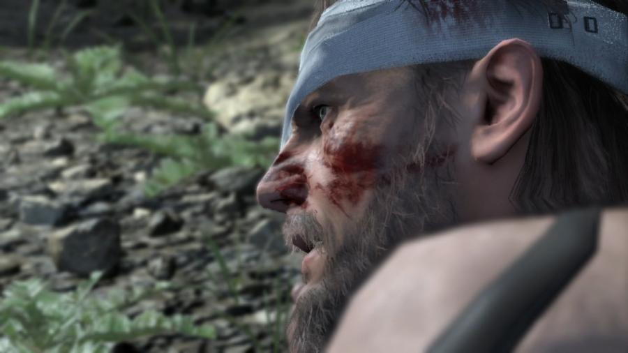 Metal Gear Solid V - The Definitive Experience Screenshot 5